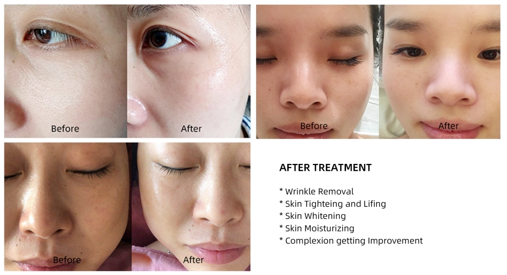 needless mesotherapy effect 01